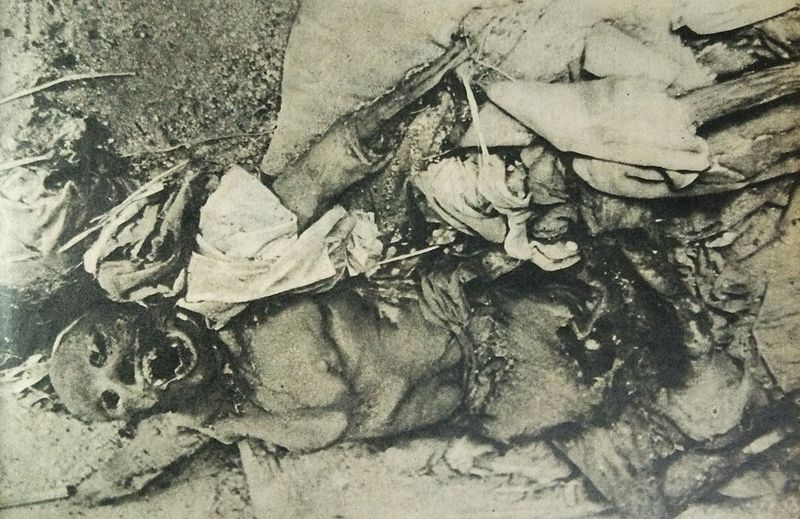 A_victim_of_the_atomic_attack_on_Nagasaki